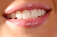 Weißere Zähne – aber nicht um jeden Preis!