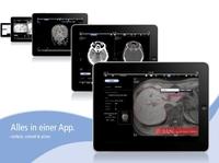 showimage aycan mobile, der mobile PACS-Viewer für die Teleradiologie erhält FDA 510(k) Freigabe