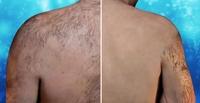 Ohne Rückenhaare ins Schwimmbad - die Alternative zu Laser und Rasierer