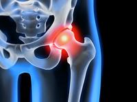 Behandlung von Hüftgelenk-Arthrose   Neue Therapien schonen die Patienten