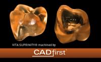 CAD/CAM Glaskeramik VITA SUPRINITY® für monolithische Versorgungen