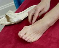 Schiefe Zehen und geschwollene Fußballen sind heilbar