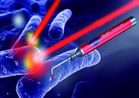Die Photodynamik beherrscht bakterielle Infektionen im Mundraum.