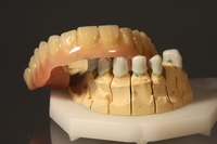 Zahnersatz aus Hochleistungs-Kunststoff - nicht nur eine Alternative für Allergiker