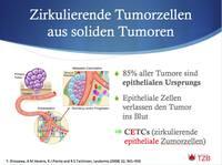 Therapieoptimierung anhand zirkulierender Tumorzellen im Blut