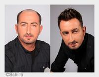 showimage Neuentwicklungen bei Haarersatz-Lösungen für Männer