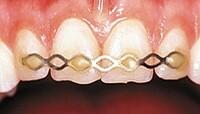 Projekt Zahnrettungskonzept.info gewinnt medartis GmbH als weiteren Förderer zum Thema Zahnunfall und Zahnrettung