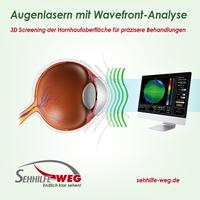 Augen lasern: Nicht ohne  Wellenfront-Analyse