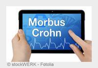 Biologische Therapie bei chronischem Morbus Crohn