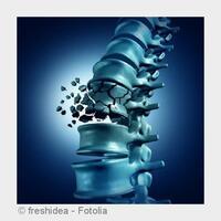 Osteoporose: Vorbeugen, erkennen, behandeln in Mainz