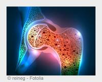 Endokrinologe, Mainz: Ernährung und Therapie bei Osteoporose