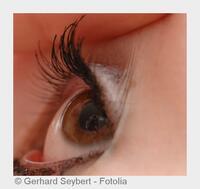 Multifokallinsen erhöhen den Sehkomfort bei Grauem Star