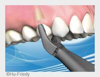 Zähne schonend extrahieren