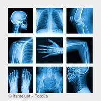 Heidelberg: Orthopäde Dr. Kusnierczak setzt auf Lasertherapie