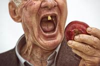 Zahnverlust, die Geißel des Homo sapiens