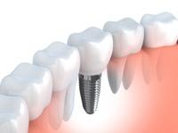 showimage Zahnärztin aus Reutlingen zu Zahnimplantaten
