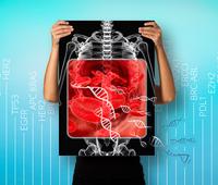Flüssige Biopsie-Test - GATCLIQUID ONCOTARGET  Erweiterung des Markersets zur Abdeckung von Blutkrebserkrankungen, wie der akuten myeloischen Leukämie (AML)