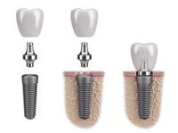 Zahnimplantate effizient und dauerhaft in Vaihingen an der Enz