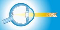 Laser Therapie bei Glaskörpertrübung
