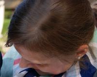 Haarausfall ist nicht nur unter Männern verbreitet - er betrifft auch viele Frauen