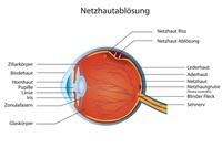 Blitze im Auge? Augenarzt aus Mainz hilft bei Netzhautablösung