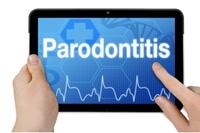 Zahnarzt (Vaihingen /Enz): Parodontitis – was steckt dahinter?