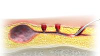 Minimal-invasive Eingriffe wie die Fisteltherapie von biolitec® senken das Risiko einer Infektion mit Krankenhauskeimen