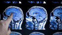 Legasthenie durch Hirn-Scan früh erkennen?