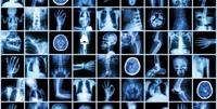 Diagnose Angiom: Moderne Neurochirurgie für die Region Bonn