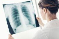 Neue Diagnostik bei Asthma und COPD