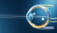 Augenarzt Janßen (Region Neuss) zum Grauen Star