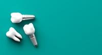 Zahnfleischentzündung: Zahnarzt aus Baden-Baden / Oos klärt auf
