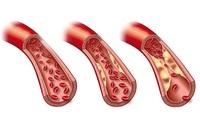 Aneurysmen an der Aorta behandeln