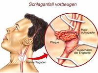 Schlaganfall vermeiden durch OP an der Halsschlagader