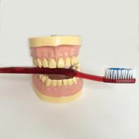 Parodontitis - viele Patienten leiden unter Zahnfleischentzündung