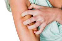 Neurodermitis: Darauf sollten Menschen mit der chronischen Hautkrankheit im Winter besonders achten