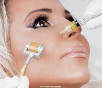 Der neue Trend - ästhetische Beauty-Behandlungen ohne OP