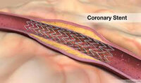 Global Coronary Stent Market Status and Prospect, Forecast 2018 to 2026