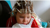showimage Leiden und Leben - Klein Mariia aus der Ukraine braucht unsere Hilfe