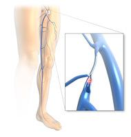 Krampfadern: Venenschwäche betrifft nicht nur Beine