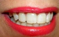 Dentalplus:  Implantat oder Brücke für ein Lachen ohne Lücke