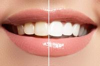 Ihr Zahnarzt in Karlsruhe für ästhetische Zahnmedizin