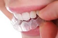 Infoabend zum Thema unsichtbare Zahnspangen in Kirchheim