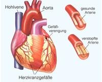 Verschluss der Aorta - Ursachen und Diagnostik