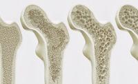 Welche Ergebnisse liefert die Knochendichtemessung?