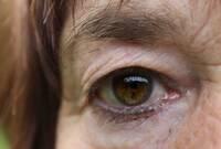 Augenarzt aus Mainz: Sturzprophylaxe mit Grauer Star OP