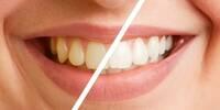 Professionelle Zahnreinigung in Vaihingen / Enz macht Sinn