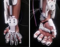 Gelähmte Hand wird durch Exoskelett wieder funktionsfähig