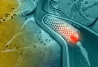 Was ist die endovaskuläre Therapie der Aorta?