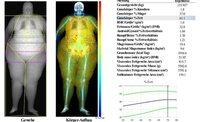 Knochendichtemessung und Osteoporose-Prävention